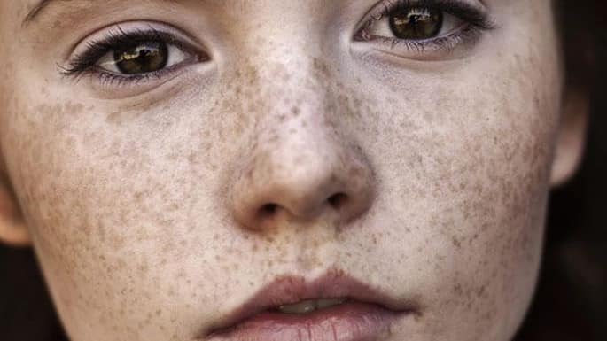 11 Home Remedies To Help Get Rid Of Dark Spots