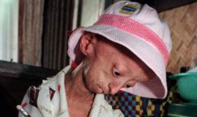 Shocking! 18-year-old girl who's surviving in body of 144-year-old!