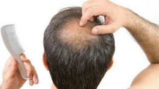 Lifestyle Habits That Are Causing Your Hair Loss