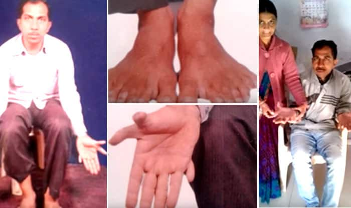 This 43-year-old carpenter from Gujarat has 28 fingers and toes! (Watch Video)