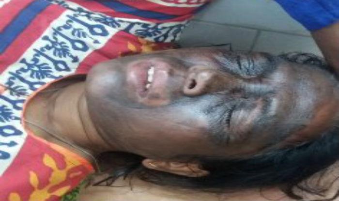 Arvind Kejriwal calls on Chhattisgarh Government to nab Soni Sori's attackers