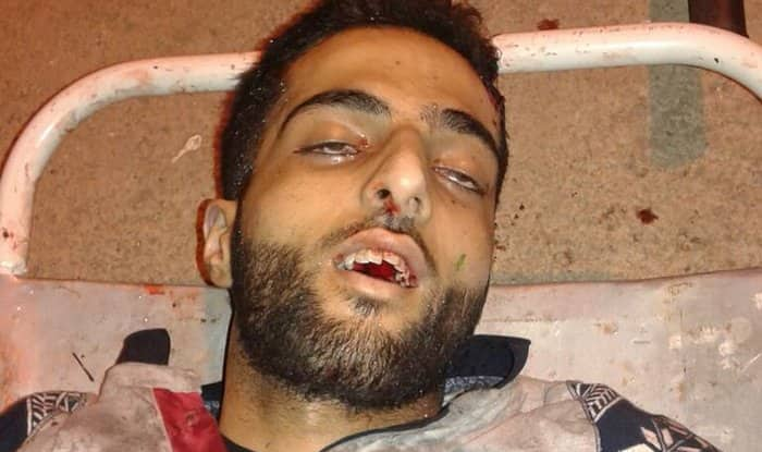 Burhan Wani encounter: The Hizbul militant began crying before Indian Army killed him