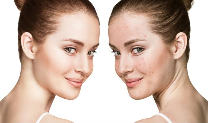 How to get rid of acne? 19 tips to get back your acne-free glowing and healthy skin