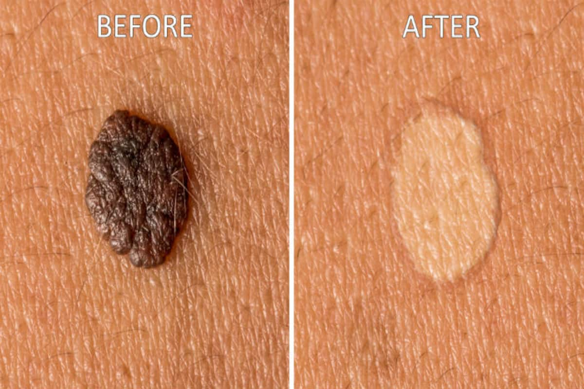 How to get rid of moles: 9 natural home remedies to remove moles from your  body | India.com