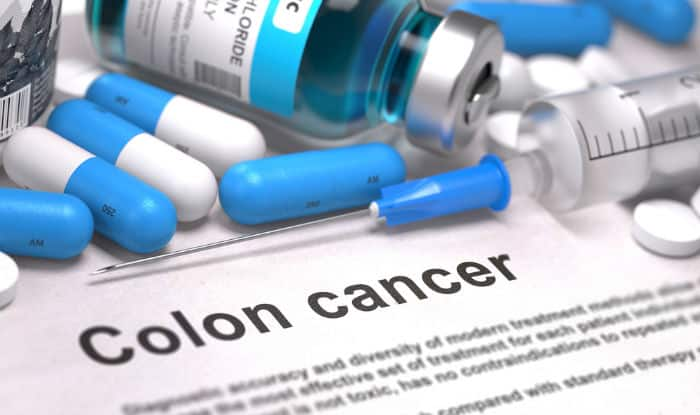 Colorectal Cancer: Symptoms, prevention and treatment for colon cancer