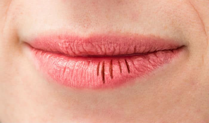 6. Use mustard oil on chapped lips