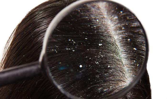Foolproof Tricks to Clear Your Dandruff