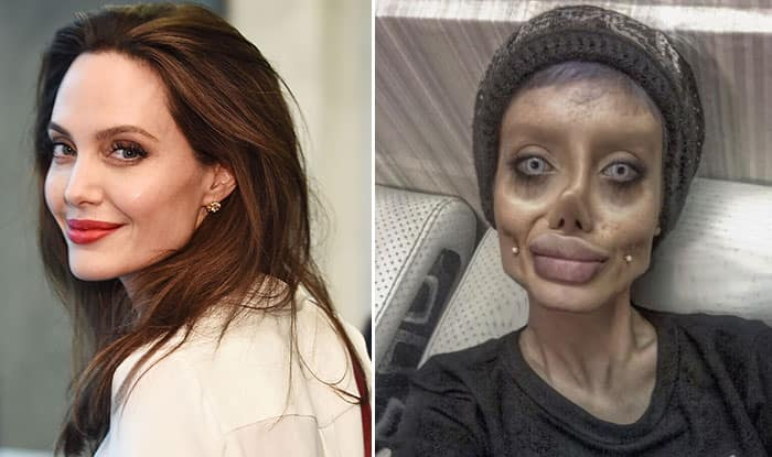 Iranian Teenager Undergoes 50 Surgeries to Look Like Angelina Jolie (Pictures)