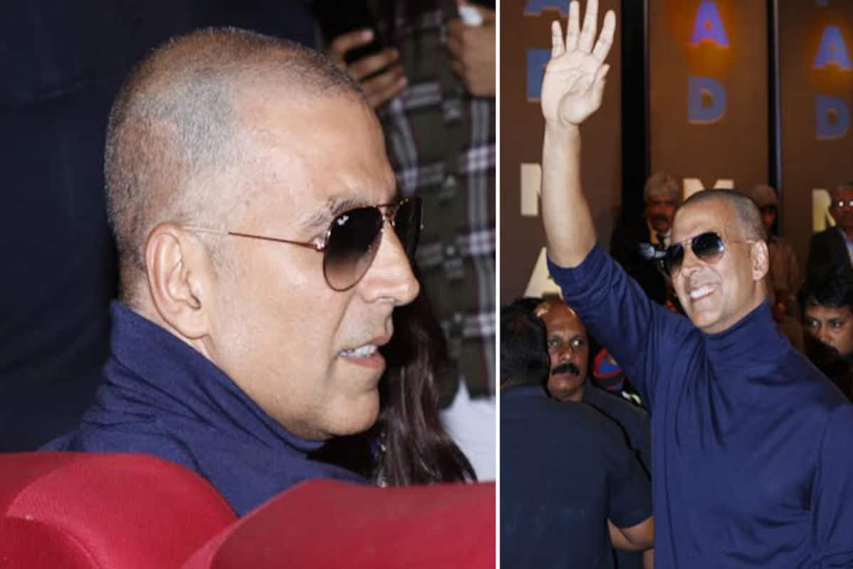 Akshay Kumar Went Bald For A Hair Transplant Padman Actor Reveals The Truth India Com