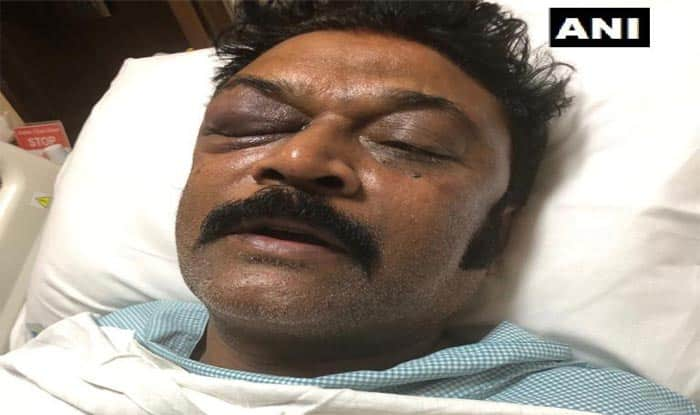 Karnataka Crisis: Congress Suspends MLA Ganesh For 'Attacking' Colleague Anand Singh, FIR Registered; Accused Lawmaker Says 'I Too Was Injured'