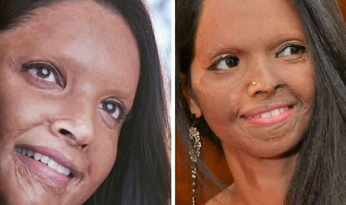 Acid Attack Survivor Laxmi Agarwal Speaks on 'Pyaari' Deepika Padukone And Her Life Through Chhapaak