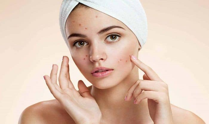Treat Acne And Get a Flawless Skin With This Facial Mask