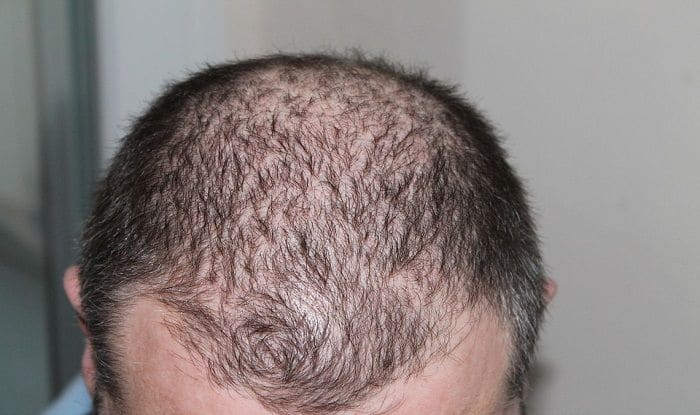 Hair Loss: Exposure to Air Pollution Can Cause The Problem