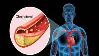 Here is Why You Must Maintain Balance Between Good And Bad Cholesterol Level