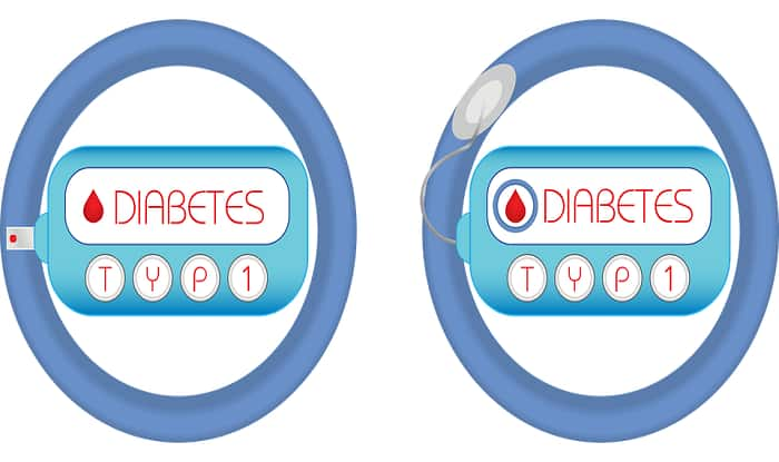 Diabetes: This is How it Impacts Your Life