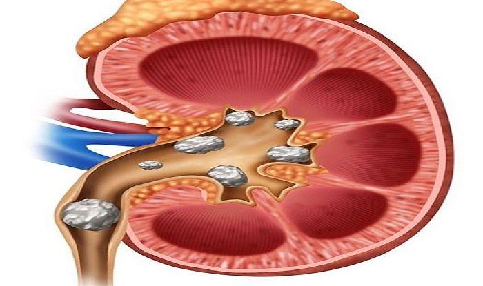 Natural Ways to Dissolve Kidney Stones