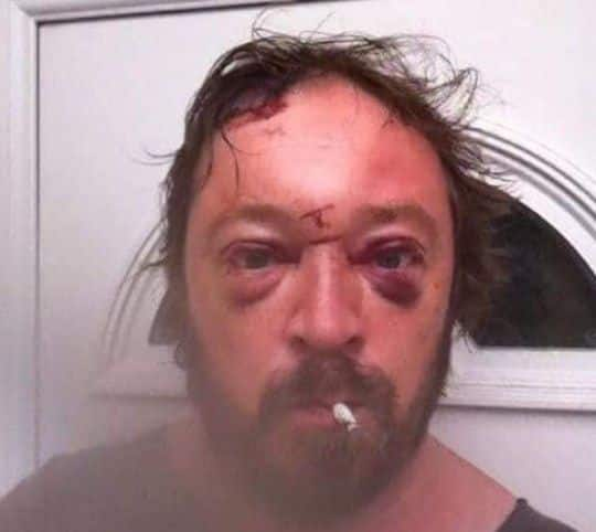 Alcoholic Man Gives Up Drinking Entirely After Seeing His Shocking Selfie