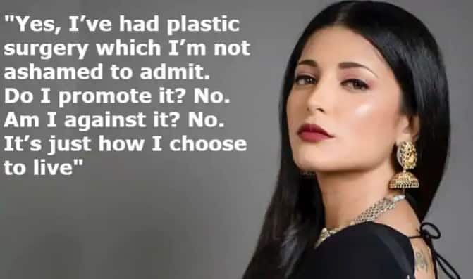 Shruti Haasan Talks About Plastic Surgery, Hormonal Pain And Body Shaming in an Important Viral Post