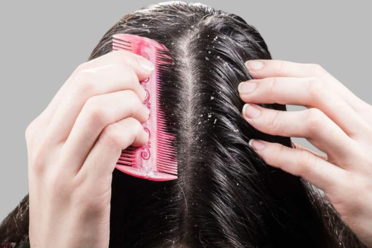 Hair Care Tips How To Use Baking Soda To Get Rid Of Dandruff