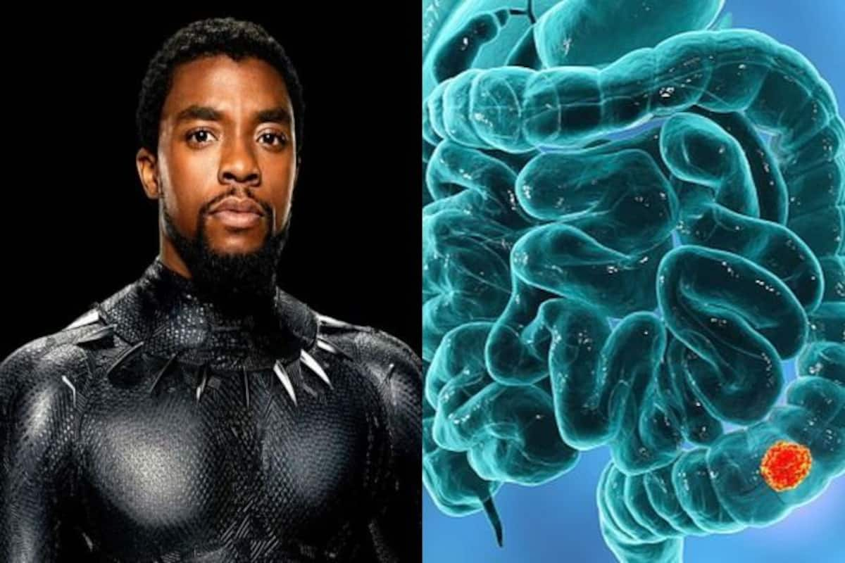 All About Colon Cancer Symptoms And Treatment Of Disease That Took Black Panther Aka Chadwick Boseman S Life