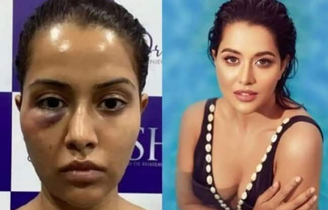 Tamil Actor Raiza Wilson's Face Treatment Goes Wrong, Bashes Dermatologist Who Forced Her to Undergo Treatment