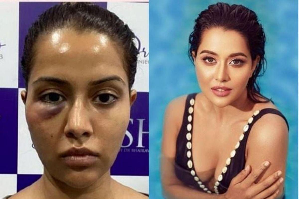 Raiza Wilson Files Complaint Against Dermatologist, Seeks Rs 1 Crore For