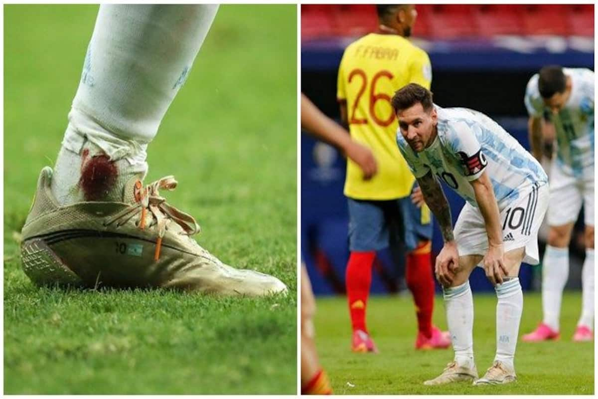 Lionel Messi News | Lionel Messi Plays With Bleeding Ankle During Argentina  vs Colombia Copa America 2021 SemiFinal | Lionel Messi News | Messi Goals